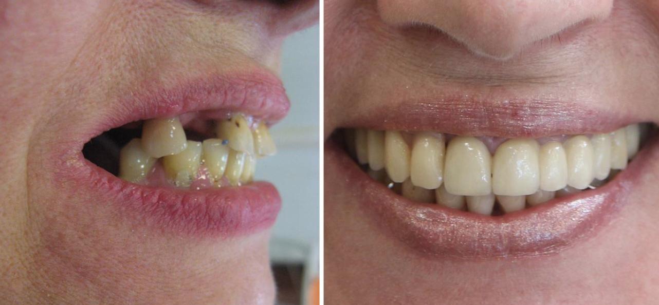 stomatologia estetyczna bydgoszcz przed i po
